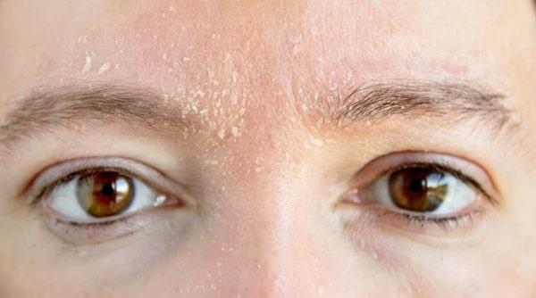 Bị khô da khi dùng BHA là một hiện tượng bình thường và phổ biến