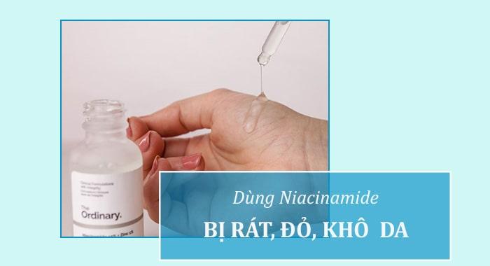 Dùng Niacinamide bị rát da